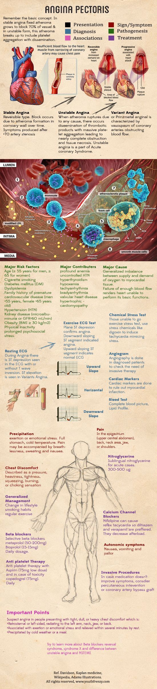 difference between stable and unstable angina pdf